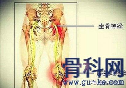 坐骨神经痛有什么锻炼方法