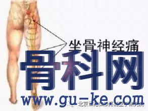 坐骨神经痛的针灸治疗方法