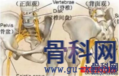 坐骨神经痛的科学康复方法