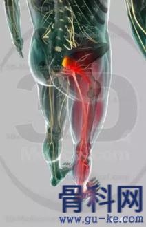 坐骨神经痛腰突引起的原因