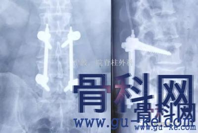 15年前腰椎骨折做的手术,现在螺钉断了,怎么办?
