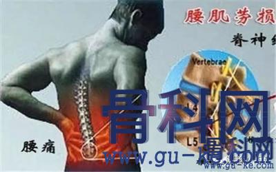 腰肌劳损会引发腰椎间盘突出吗?