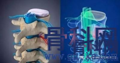腰间盘突出压迫坐骨神经痛,引起腿酸麻胀痛,该怎么治?