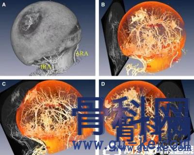 股骨头内血运新概念暨股骨头内血运三大分期
