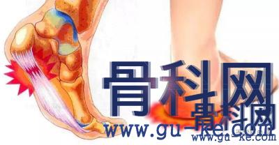 足跟痛跟腱炎骨刺疼痛外洗方