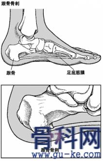 消鱼刺的方法竟能治疗骨质增生