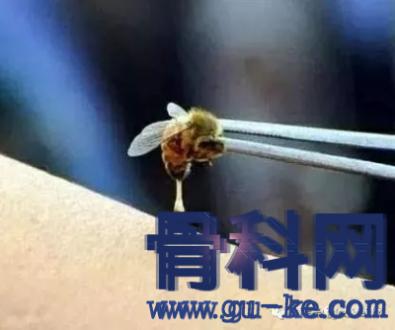 蜂毒为什么可以治疗风湿关节炎 ?