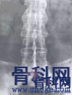 强直性脊柱炎的诊断治疗,你真的掌握了吗?