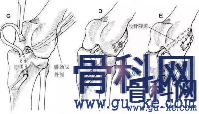 韧带拉伤怎么办恢复快,多久恢复?