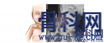 新生儿锁骨上无痛肿块是怎么回事?