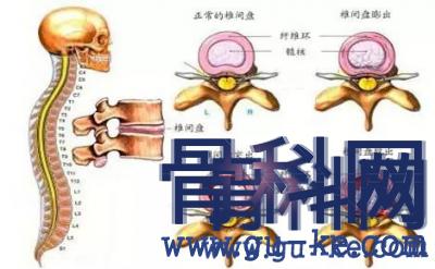 如何保护腰椎,什么会导致腰椎不好,有什么治疗方法?