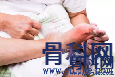 脚痛风发作难忍怎么办,什么方式可以缓解脚部痛风?
