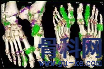 关节创伤为何会诱发痛风,为什么尿酸盐结晶脱落时才会引起痛风的发作?