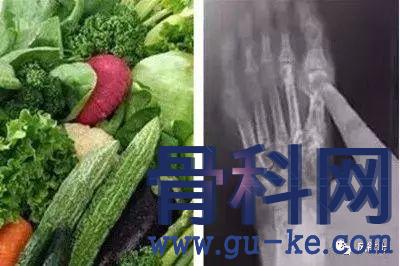 哪些蔬菜更适合痛风人群食用,从哪些方面考虑?
