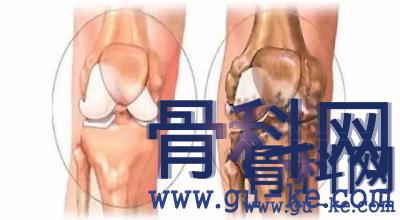 关节经常疼是什么病?膝盖里不舒服是怎么回事?膝关节不能扭动是哪里出了问题?