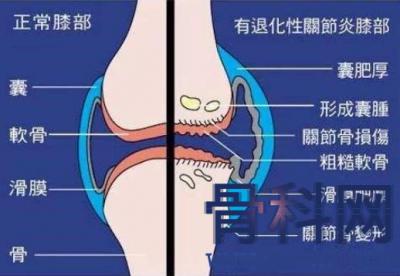 膝盖疼是什么原因,如何鉴别损伤在哪?