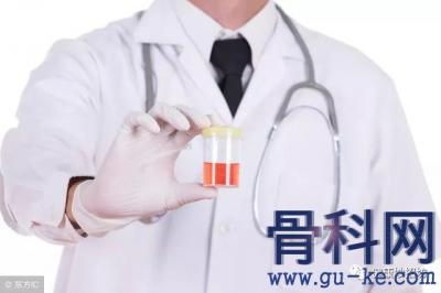 尿酸高会诱痛风侵蚀肾脏吗,有什么办法可以降尿酸?