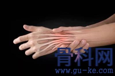 什么是腱鞘炎,常见的腱鞘炎分类有哪些,如何远离腱鞘炎?