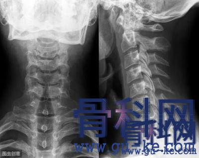 颈椎生理曲度变直,怎么改善?