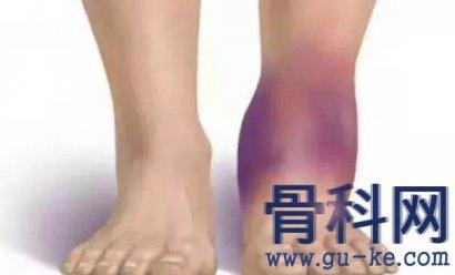脚踝痛风应该怎样处理?