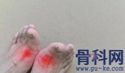 什么方法可以减轻脚上的痛风发作?