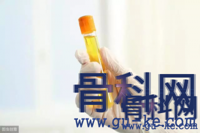 从高尿酸发展到痛风晚期有几个阶段?
