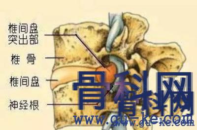 腰椎突出的后果是什么?腰椎突出的治疗方法有哪些?