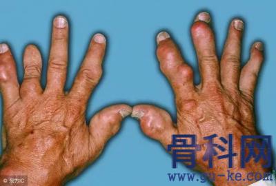 痛风石溶解有什么表现,过程中是否伴有疼痛?