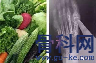 有这几个特点的蔬菜,对痛风降酸更有利!
