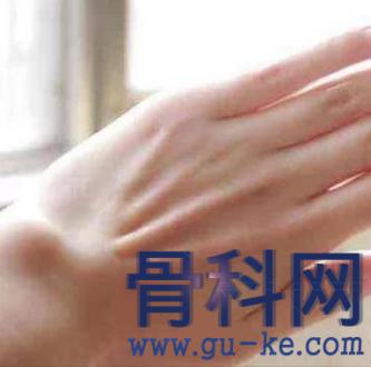手腕腱鞘囊肿是什么?如何消肿,缓解疼痛?