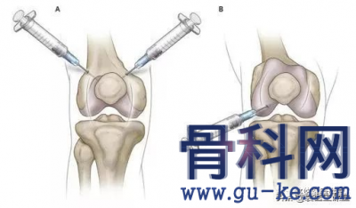 膝盖疼可以打封闭针,封闭治疗是什么?