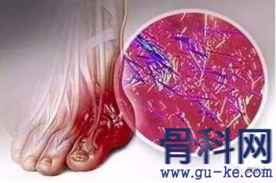 痛风进展到肾病时,动物模型展现了真实的肾脏病理变化!