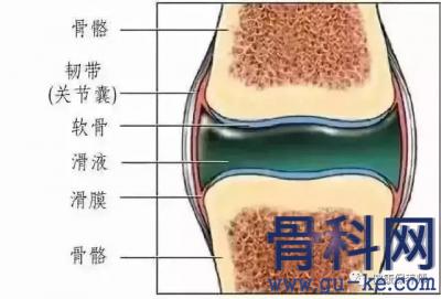 膝盖疼痛、滑膜炎的根源是什么?