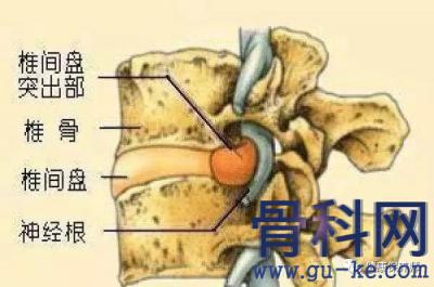 腰椎过程后有哪些症状,正确护理腰椎过程的方法有哪些?
