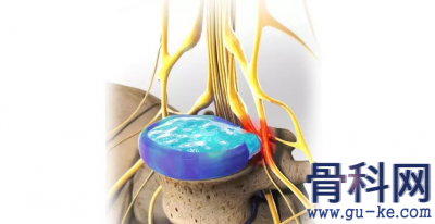 坐骨神经痛不一定是腰椎病,导致坐骨神经痛的主要原因有哪些?