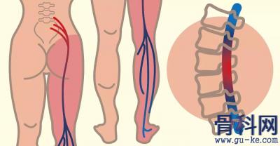 9个简单的瑜伽动作,缓解坐骨神经痛