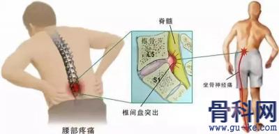 腰椎间盘突出为何老是不好,怎样判断腰突是否严重?