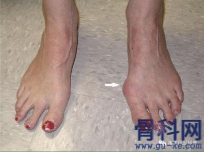 足部疼痛,就是长骨刺吗?