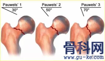 那些股骨颈骨折不能用空心钉固定?