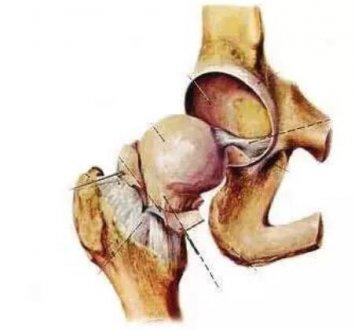 骨坏死中为什么股骨头坏死最常见?