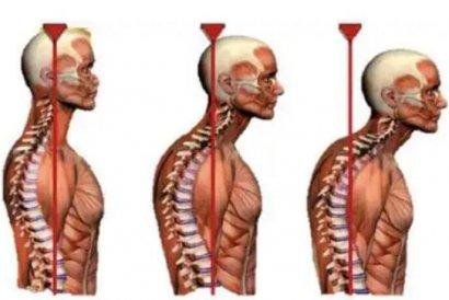 老年脊柱压缩性骨折——骨水泥强化术到底值不值得做?