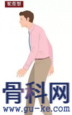 哪些走姿不正?,5种走姿最伤腰腿,速来纠正吧!