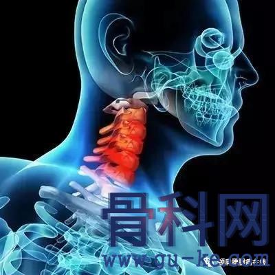 """颈椎""""咯嘣""""声是劳损的信号,出现颈椎的响声切要注意什么?"""