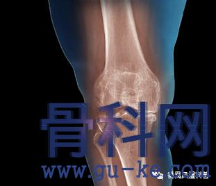 膝盖痛是什么原因造成的?